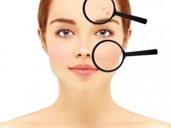 Top 5 greşeli de îngrijire a pielii