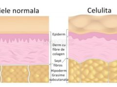 Lupta împotriva celulitei poate să fie câștigată! Iată un leac imbatabil