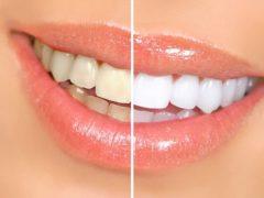 2 ingrediente care te vor ajuta să ai un zâmbet strălucitor!