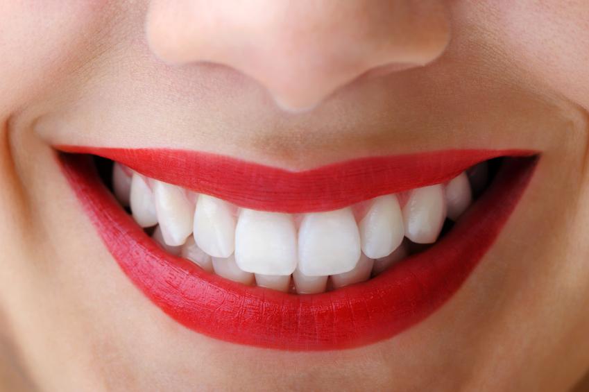 Un zâmbet cuceritor începe cu o metodă simplă: albirea dinților