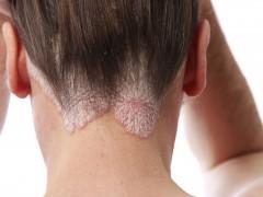 Natural, la îndemână: 5 remedii pentru psoriazis