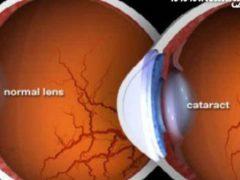 Aceasta plantă previne 8 probleme oculare, inclusiv cataracta!