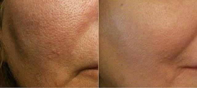 skin-pores-treatment