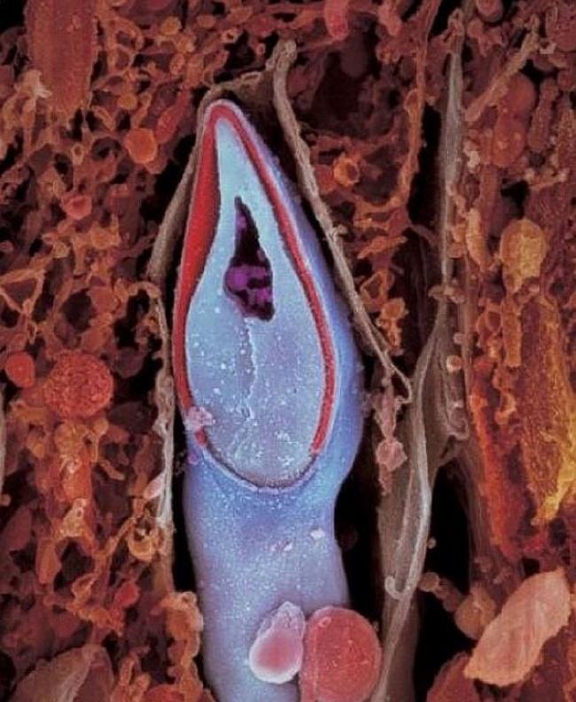 Capul spermatozoidului conține tot materialul genetic