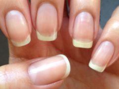Ce probleme de sănătate îți indică unghiile